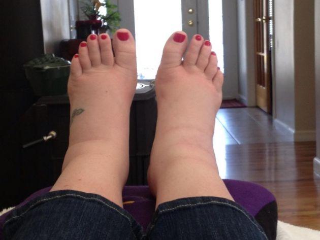 mit duzzad a láb ízületei