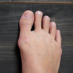 nagy lábujj alatti fájdalom)