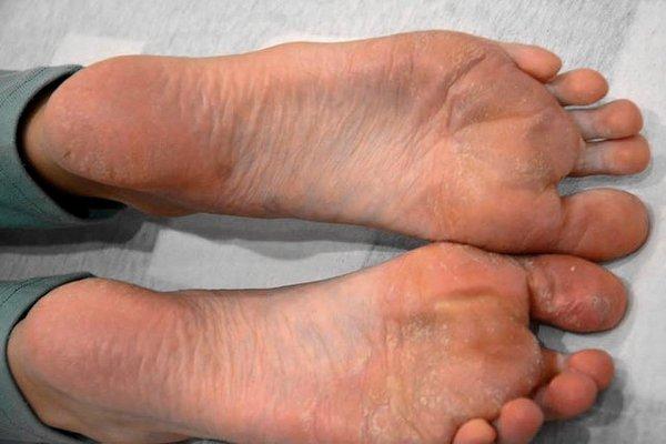 neurodermatitis ízületi fájdalom)