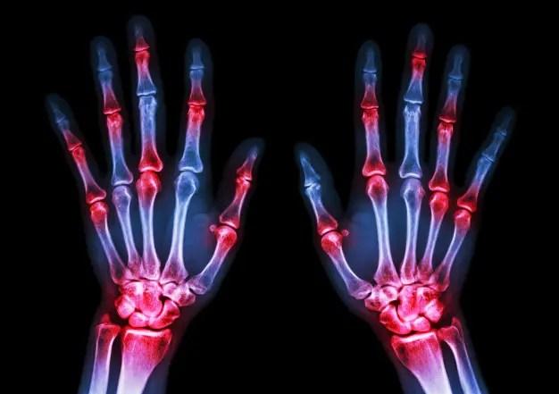 nyújtó osteoarthritis kezelés