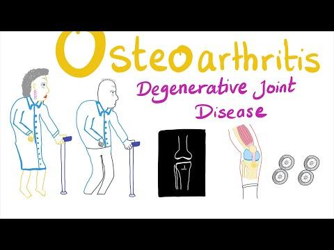orvos tanácsai az osteoarthritis kezelésében)