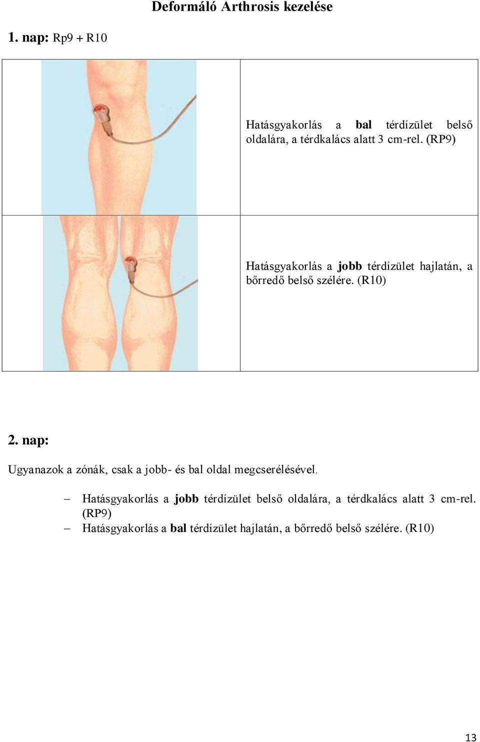 orvosi epe az artrózis kezelésében