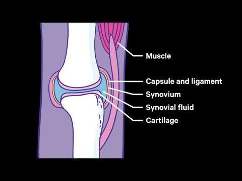 osteoarthritis ozokerite kezelés áttekintése