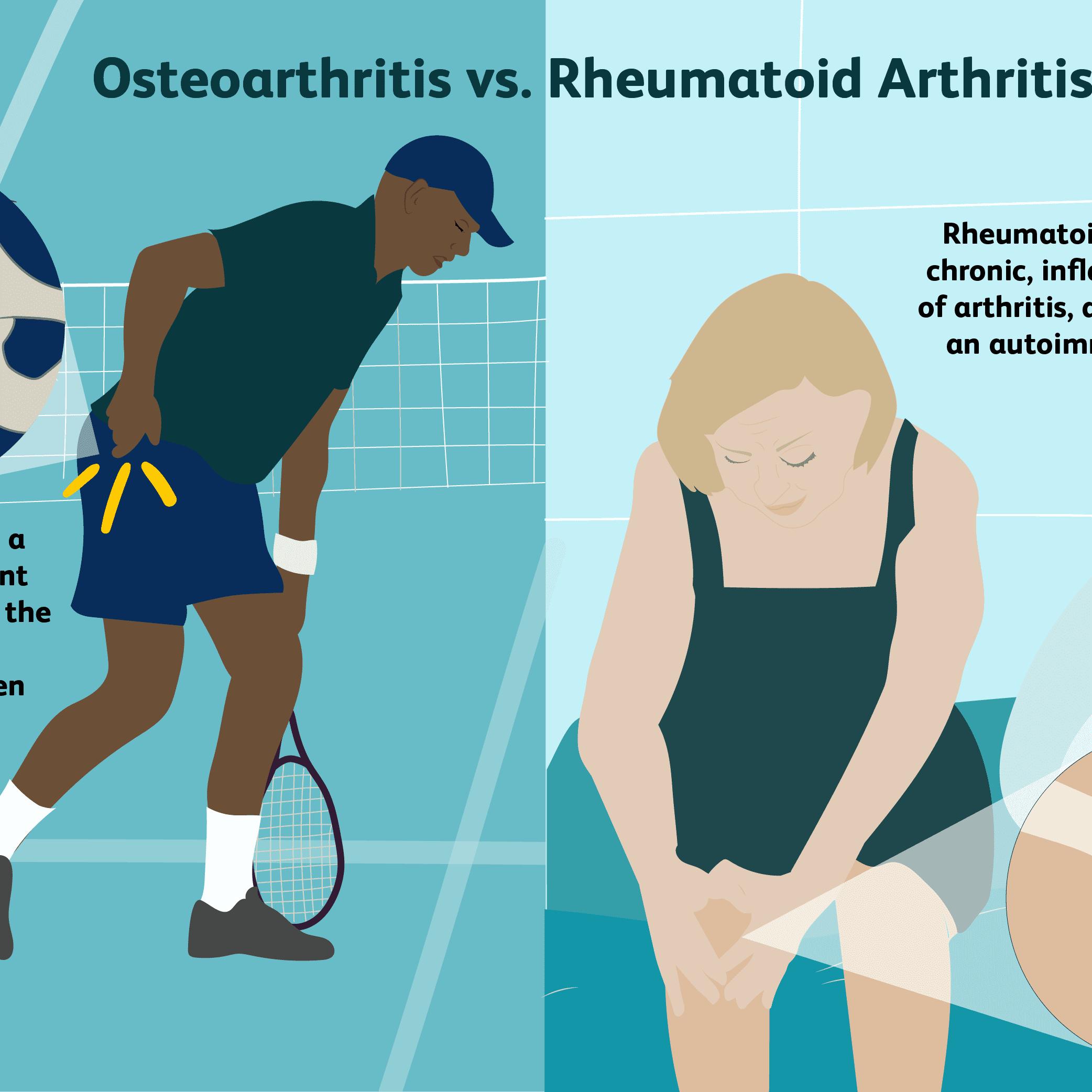 Rheumatoid arthritis a kézben