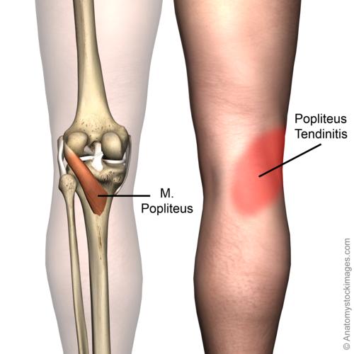 poplitealis ligamentum-töréskezelés)