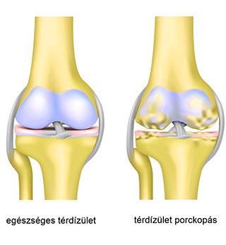 posztraumás artrózis, mint a kezelés térdfájdalom és ropogásos kezelés