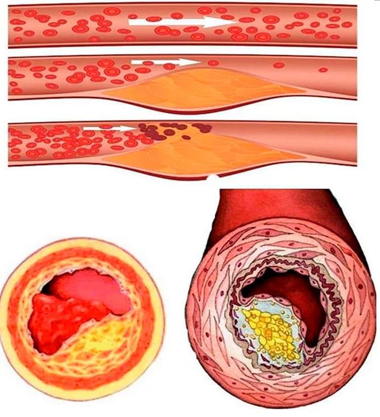 prosztata adenoma artrózisos kezelése
