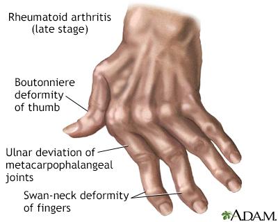 reumatoid artritisz)