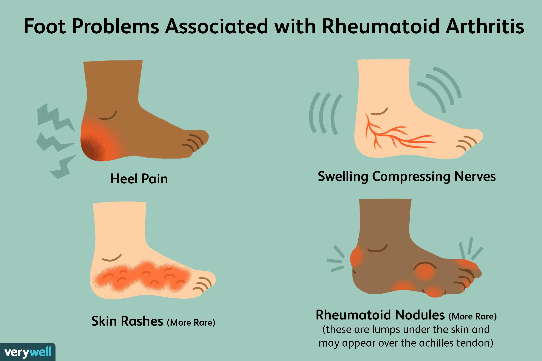 rheumatoid arthritis symptoms)