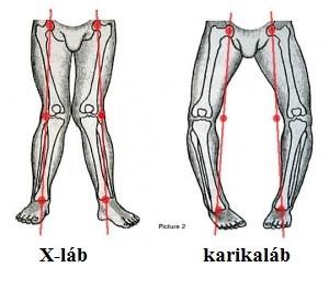 serdülőkorban a lábak ízületeinek betegségei