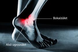 sürgősségi ellátás boka sérülések esetén