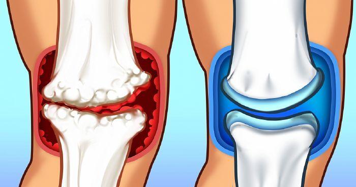 több ízület ízületi gyulladása okozza)