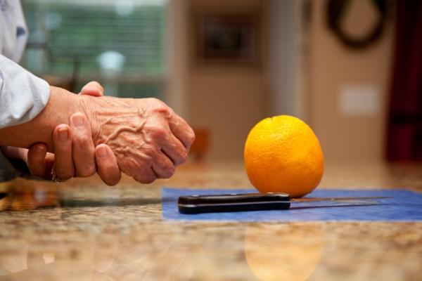 a csípő artrózisának okai
