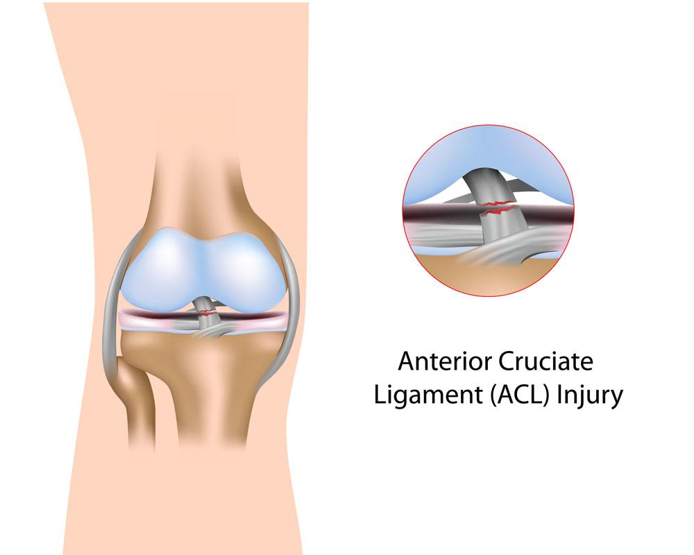 térd ligamentum sérülések kezelése rheumatoid arthritis. deformáló ízületi kezelés