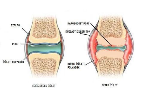 térd patellofemoralis artrózisa 2 fokos kezelés)