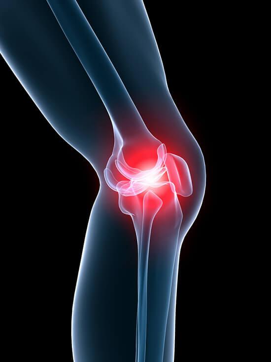 a csípőízület fáj az ülőidegtől
