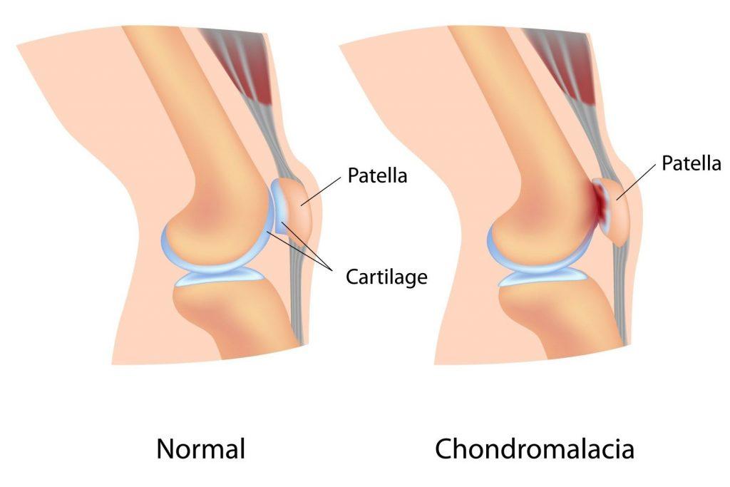 térdfájdalom és ropogásos kezelés)
