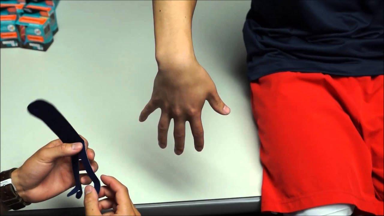 térdváltozások rheumatoid arthritisben)