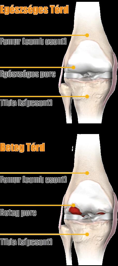 térdízület fájdalma és kezelése