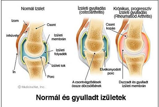 térdízületi betegségek tünetei