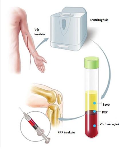térdízületi kezelés szinoviális folyadéka)