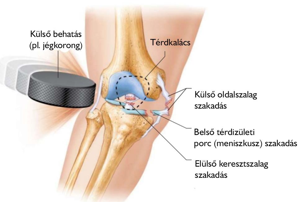 Stoller által a meniscus sérülése