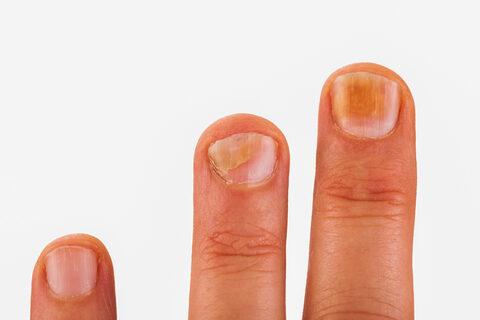 ujjgyulladás első tünetei)