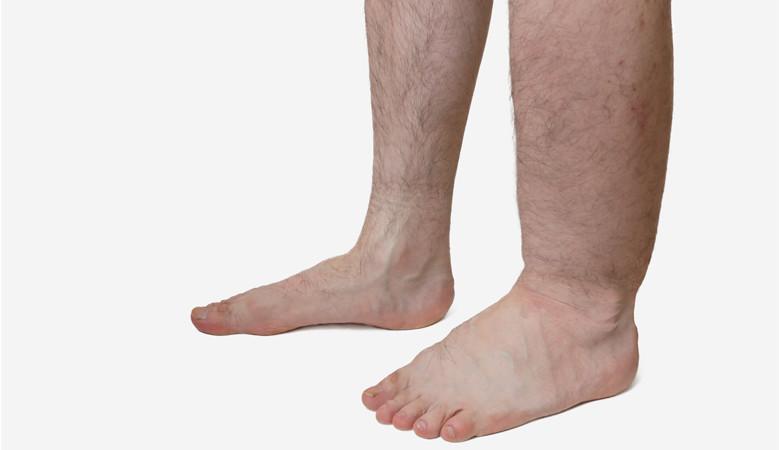 vörös és duzzadt lábak