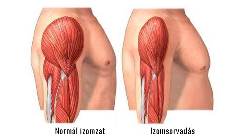 ízületi disztrófia kezelés)