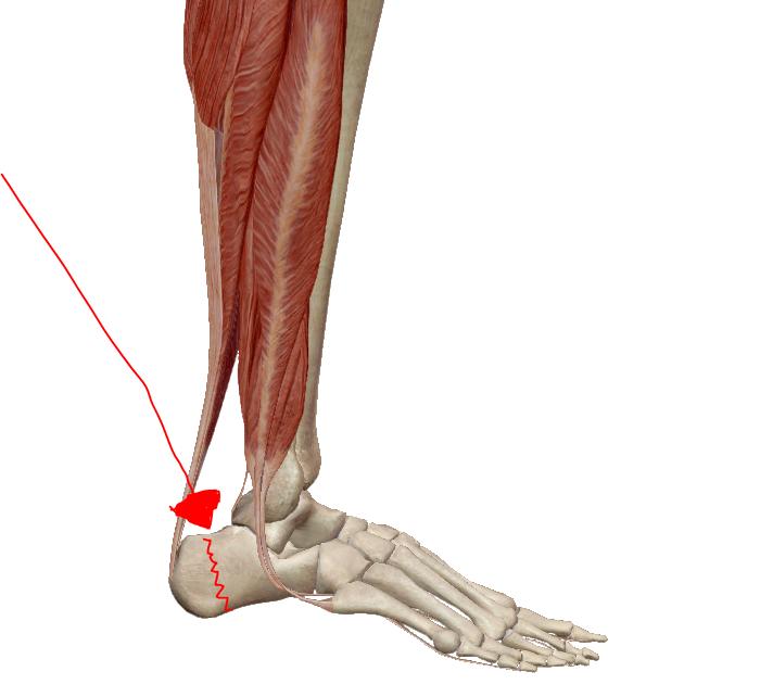 ízületi fájdalom a láb alján