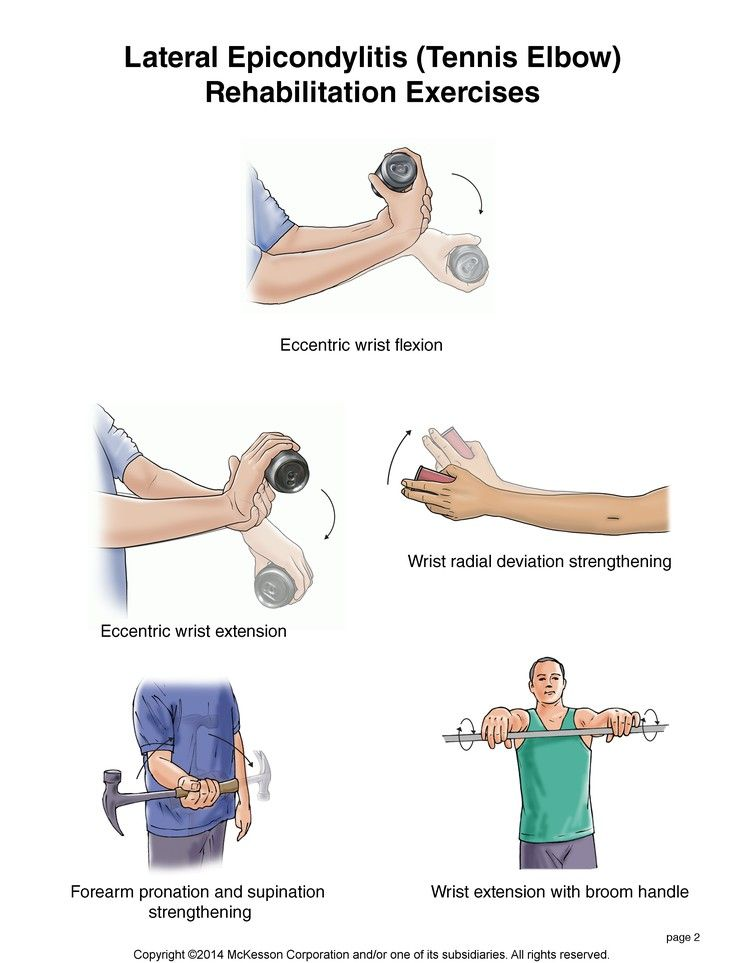 ízületi fájdalom a súlyemeléskor)