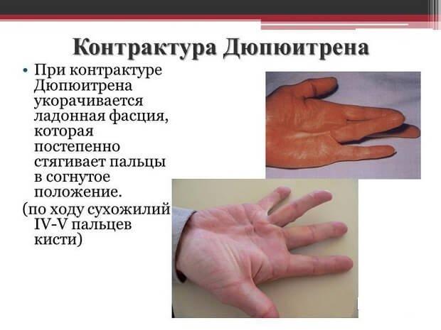 ízületi fájdalom az ujj meghosszabbítása során)