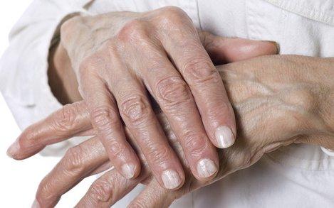 ízületi fájdalomtermék