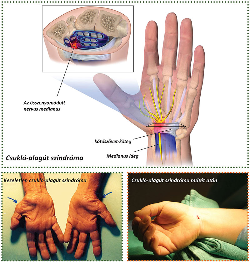 ízületi helyreállítás a kéz törése után