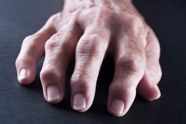 ízületi szögek rheumatoid arthritis esetén