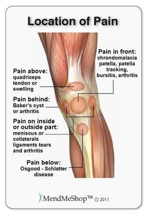 ízületi ízületi arthritisz)