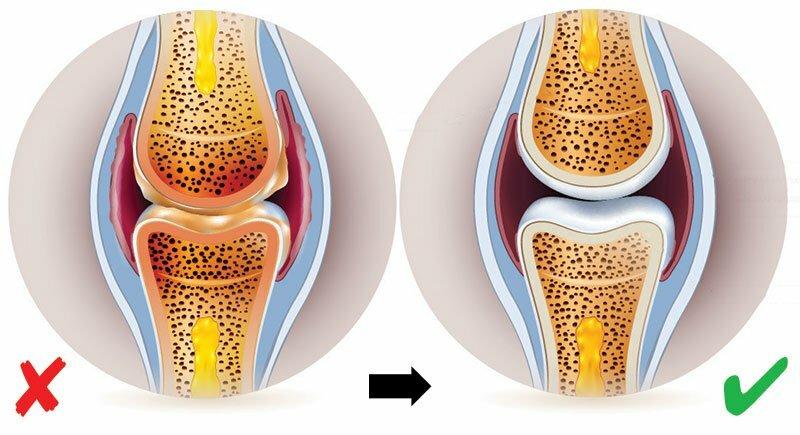 Synovitis vagy az ízületi membrán gyulladása. Nyáktömlő-gyulladás (Bursitis)