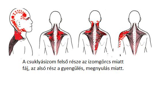 Hátfájás, nyaki panaszok, ízületek - Tíz gyakori kérdés a reumatológusnál