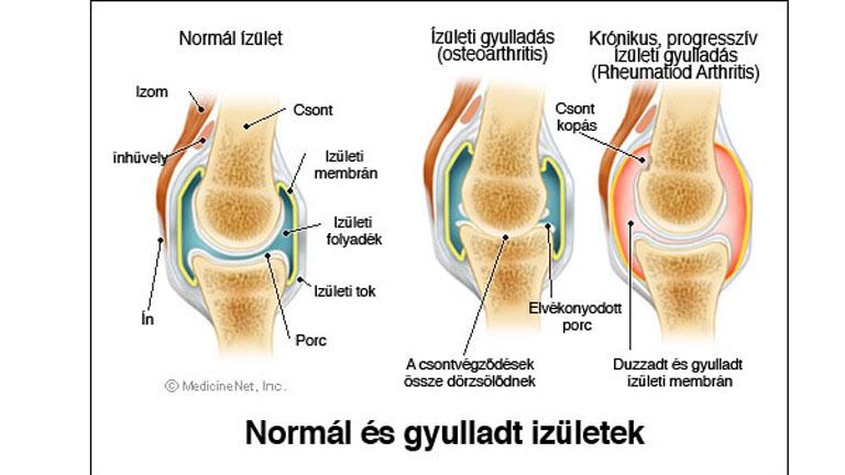 térd endoproteézis gyulladás
