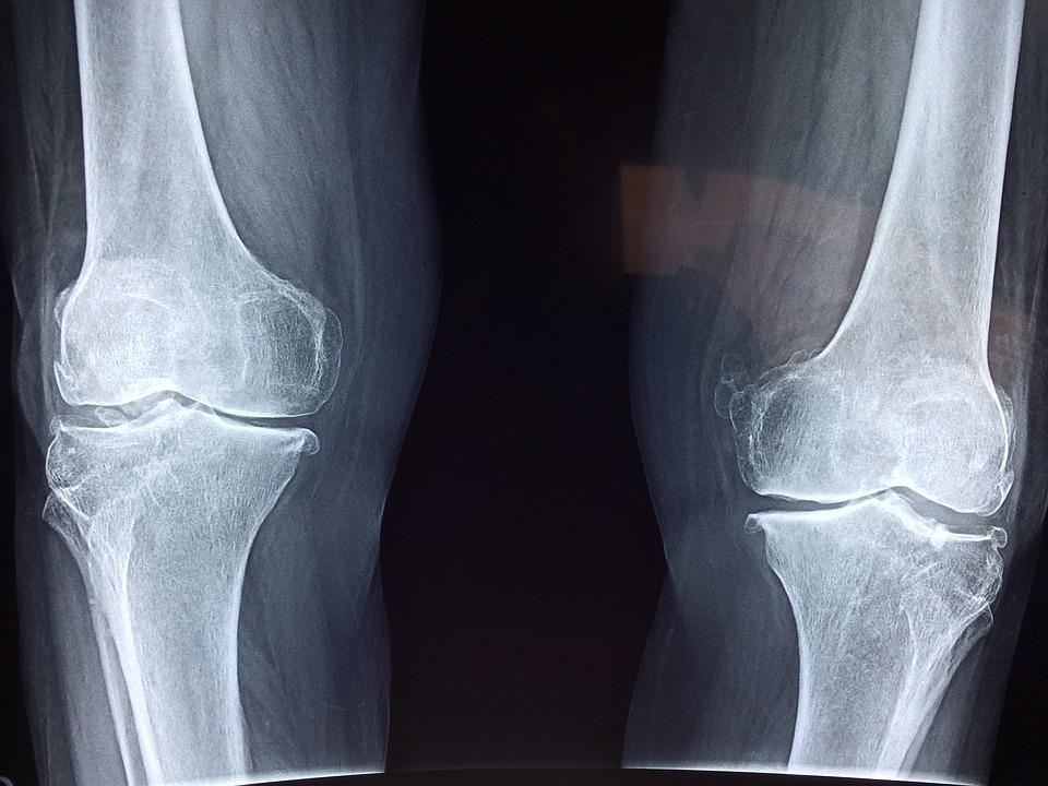 kezelhető-e éhség a rheumatoid arthritis)