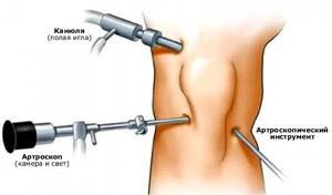 A könyök oszteoarthritise: tünetek, kezelés és megelőzés