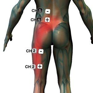 ülőideg csípő fájdalma)