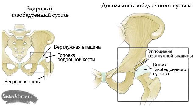 a lábak ízületeinek betegségeinek felsorolása könyökízület töréskezelés