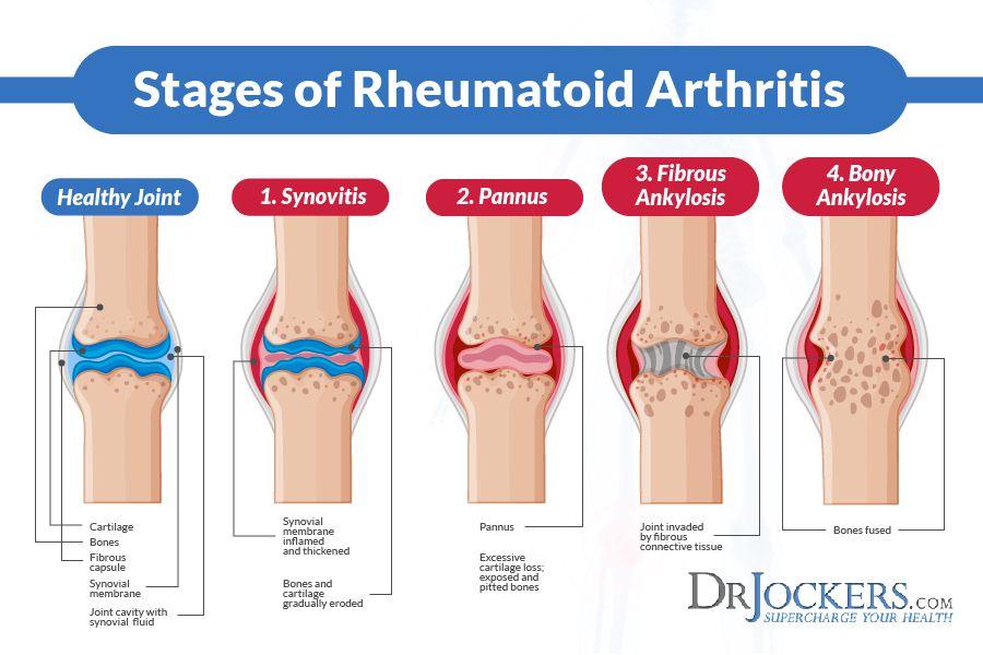 autoimmune rheumatoid arthritis)
