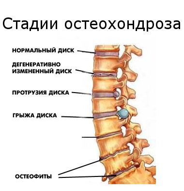 az ágyéki osteokondrozis kenőcsének neve mindkét láb ízülete fáj