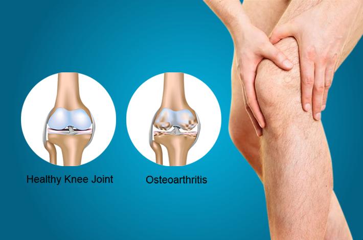 ha fájdalom jelentkezik a csípőpótlás után crohn-kór és ízületi fájdalmak