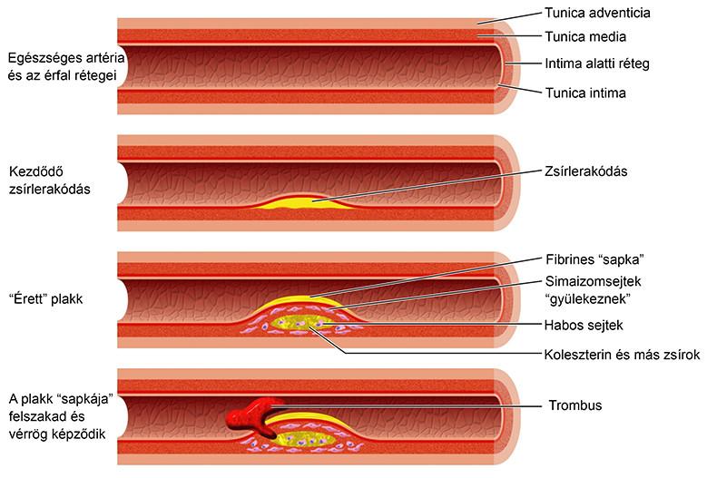5 Nimesulid, az új generáció NSAID-ének 5 fő előnye az artrózissal