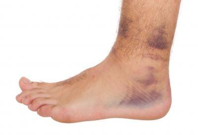 súlyosan fáj a láb bokaízülete térdízületi gonartritisz kezelése