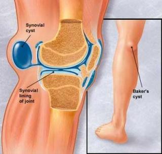fájdalom a térdízületekben és a lábakban