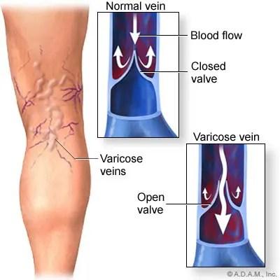 artrózisos kezelés azonnal lehetséges e az artrózis kezelése